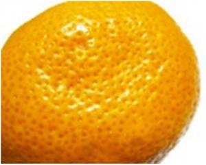 將橘皮從夏天之中徹底擊退!在冬天來臨之前一定要做好保暖